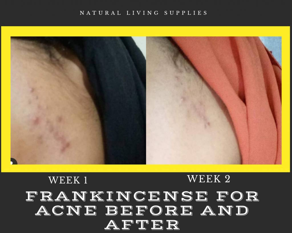 Sensational Frankincense And Acne The Perfect Match