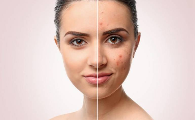 Acne And Frankincense The Perfect match